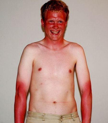 Bos - Ginger Sunburn